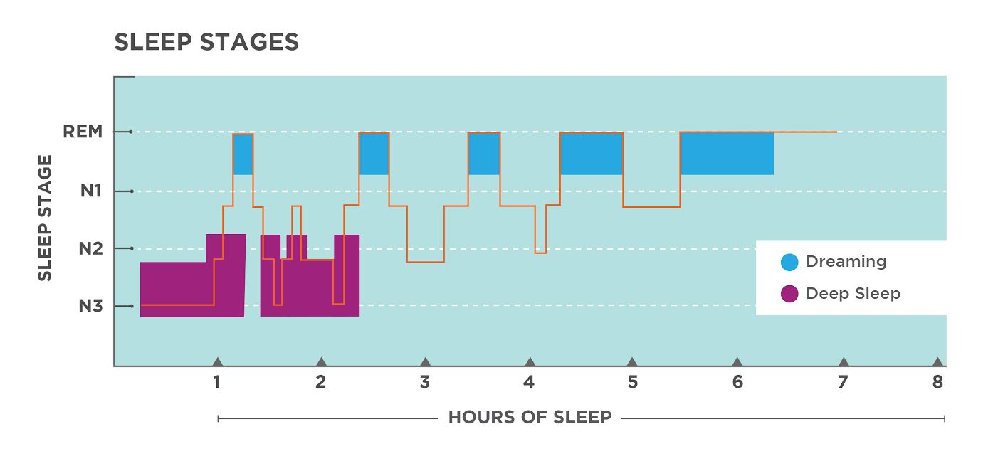 This is a hypnogram showing the transitions of the sleep cycle during a typical seven hour period of sleep. During the first hour, the person goes through stages 1,2, and 3. In the second hour, sleep oscillates between Stages 2 and 3 before attaining a 30-minute period of REM sleep. The third hour follows the same pattern as the second, but ends with a brief awake period. The fourth hour follows a similar pattern as the third, with a slightly longer REM stage. In the fifth hour, stage 3 is no longer reached. The sleep stages are fluctuating from 2, to 1, to REM, to awake, and then they repeat with shortening intervals until the end of the seventh hour when the person awakens.