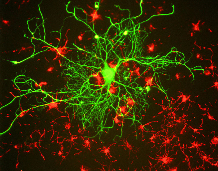 Cortical neuron stained with antibody to neurofilament subunit NF-L in green. In red are neuronal stem cells stained with antibody to alpha-internexin. Image created using antibodies from EnCor Biotechnology Inc.