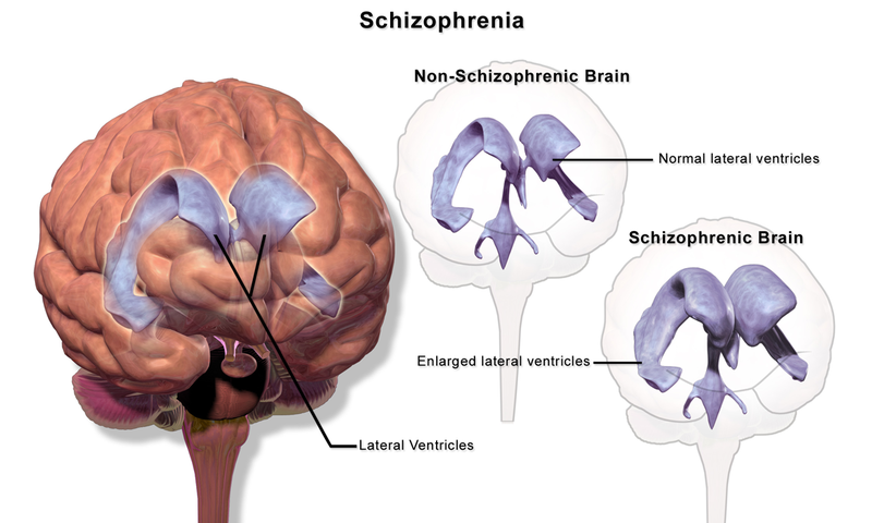 Image of the brain showing enlarged ventricles in a schizophrenic brain.