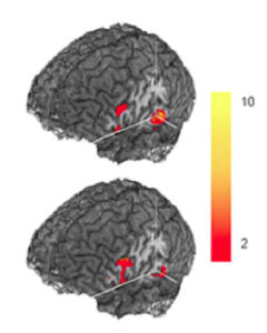 Two images of brain fMRI scans. The top image shows red areas of activation in three different regions on the back of the head, and he bottom scan shows activation in two similar areas. A bar showing the intensity of the activation from red (2) to yellow (10) is shown next to the brain scans.