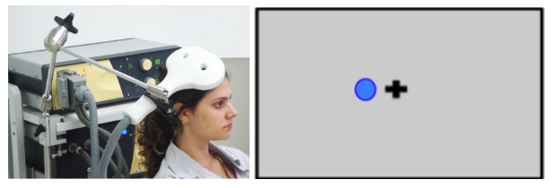 Image of a person with a TMS wand held over the head. To the right of that, there is a cross and a white circle with a blue outline. This represents how that circle would temporarily disappear for someone during the TMS stimulation.