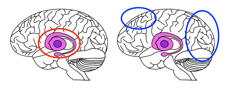 Two images of brains, the first, showing the area in the center around the thalamus and hippocampus where activity occurred while holding a partner's hand. The right shows areas in the frontal and occipital lobes in the cerebellum where it was active while subjects were distracted.