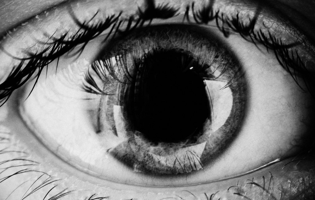 """""""Eye"""" by Conal Gallagher is licensed under CC BY 2.0"""