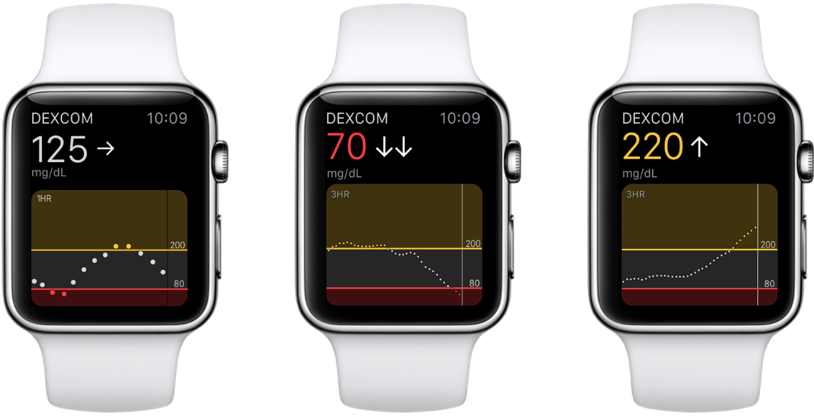 Can I View My Dexcom G5 Mobile Cgm Data On An Apple Watch