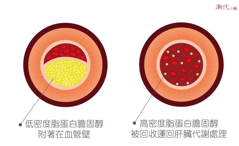 壞膽固醇與好膽固醇