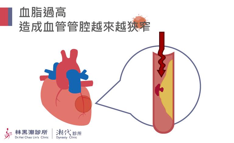 高血脂造成血管管腔狹窄
