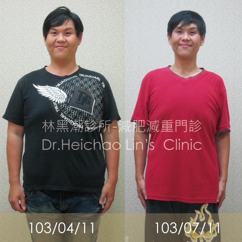 【減重成功】2.9個月23.9kg