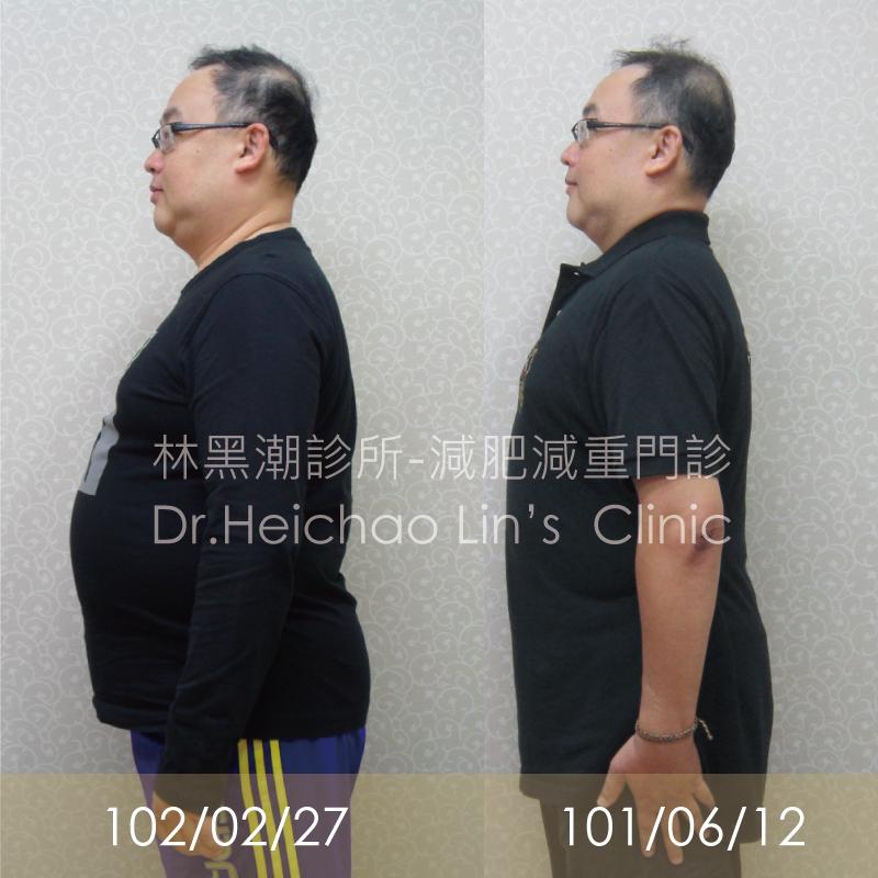 減肥沒師父,找對醫師、用對方法