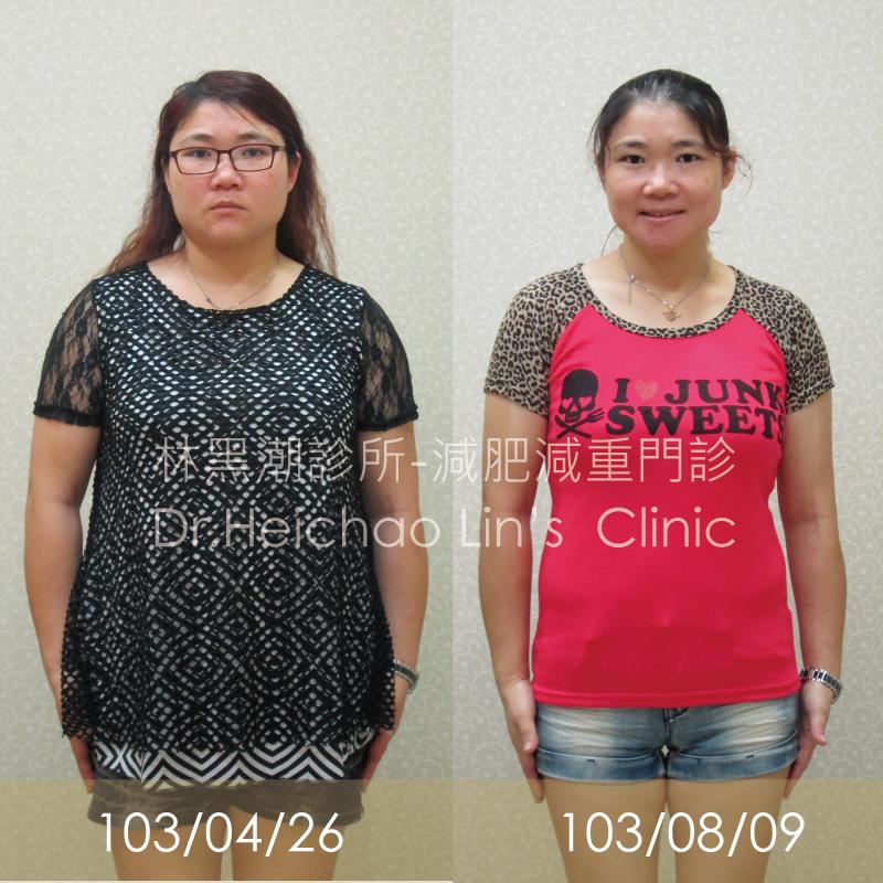 【黑潮見證】2個月13.3kg減肥成功