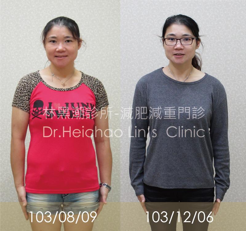 【黑潮見證】 減肥90天 19.3kg成功