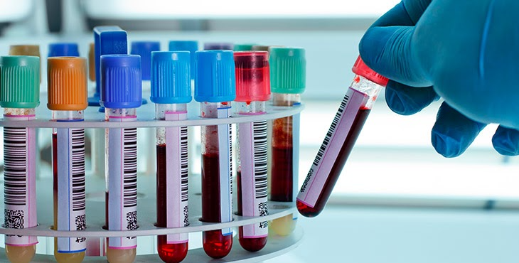 Na foto, vários tubos de amostra de sangue estão identificados com código de barras, uma mão com luva coloca mais um tubo junto aos outros.