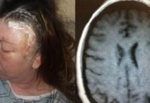 Woman's Brain Tumor Turns Out to Be a Parasite