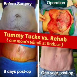 If you have a diastasis recti (split in your abs) should you do rehab or get a tummy tuck? One more who did both tells all at fit2b.us