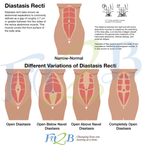 different types of diastasis rectus abdominus - fit2b.com