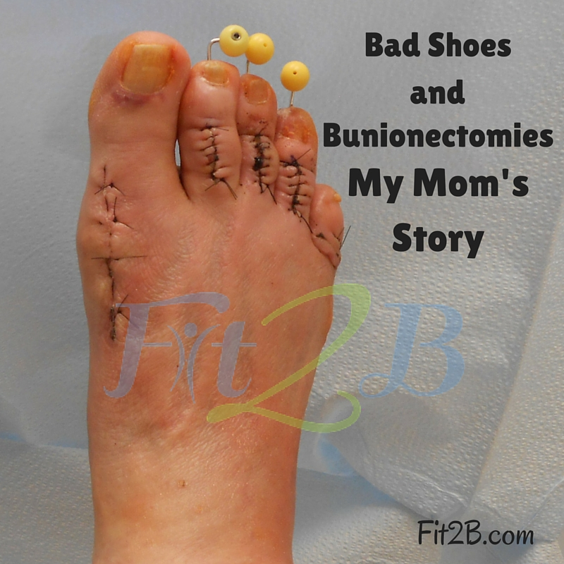Bad shoes and Bunionectomies: My Mom's Story - fit2b.com
