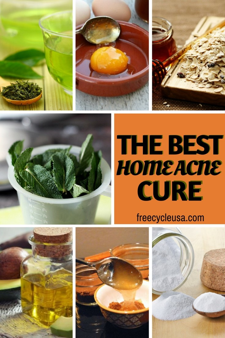 7 Best Home Facial ACNE Remedies