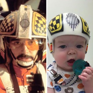 craniosynostosis-helmet-star-wars-kid-3