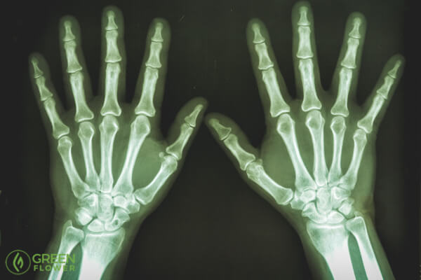 x-ray of human hands