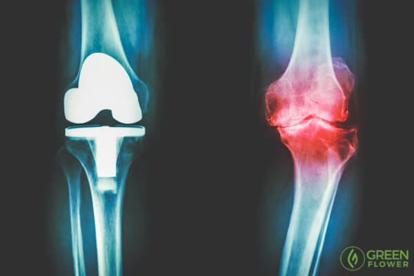 x-ray of arthritis in the knee