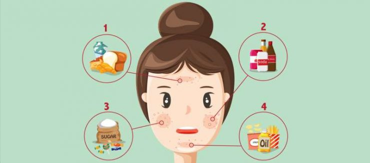 8 foods that cause acne