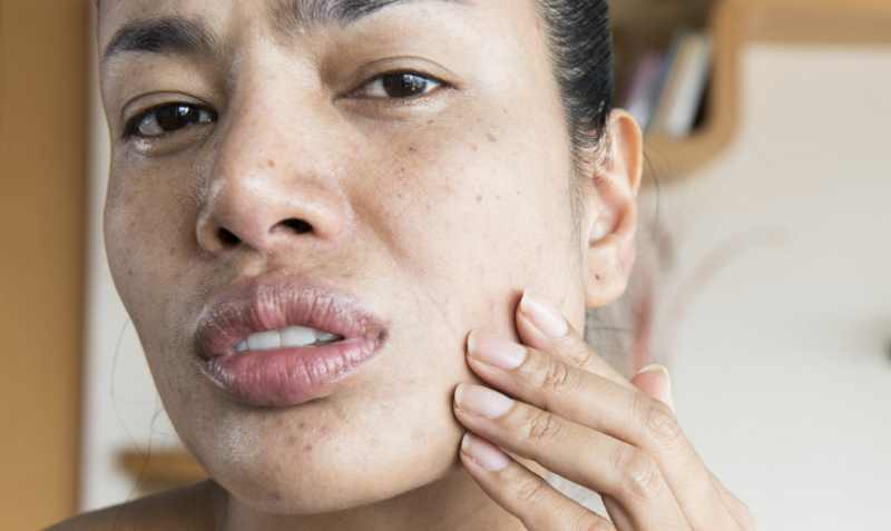 Image result for Can Dry Skin Cause Breakouts?