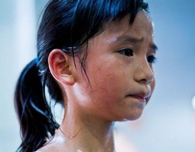 sweat cause acne