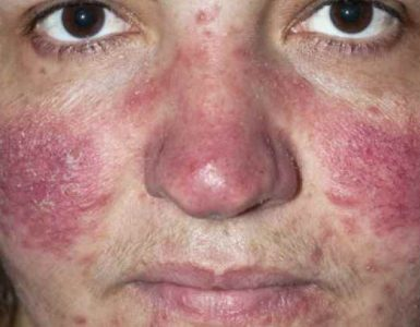 get rid acne on nose