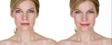 get rid of acne discoloration