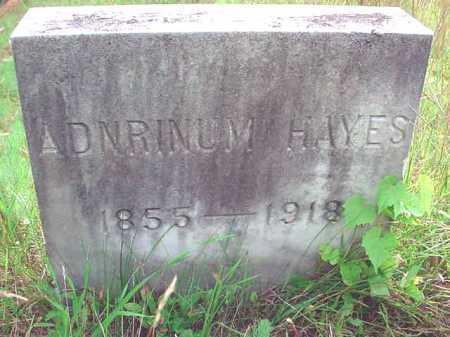 HAYES, ADNRINUM - Warren County, New York | ADNRINUM HAYES - New York Gravestone Photos