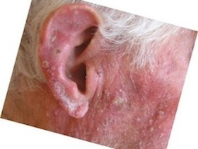 actinic-keratosis-solar-keratoses cream treatment drop off before is skin cancer
