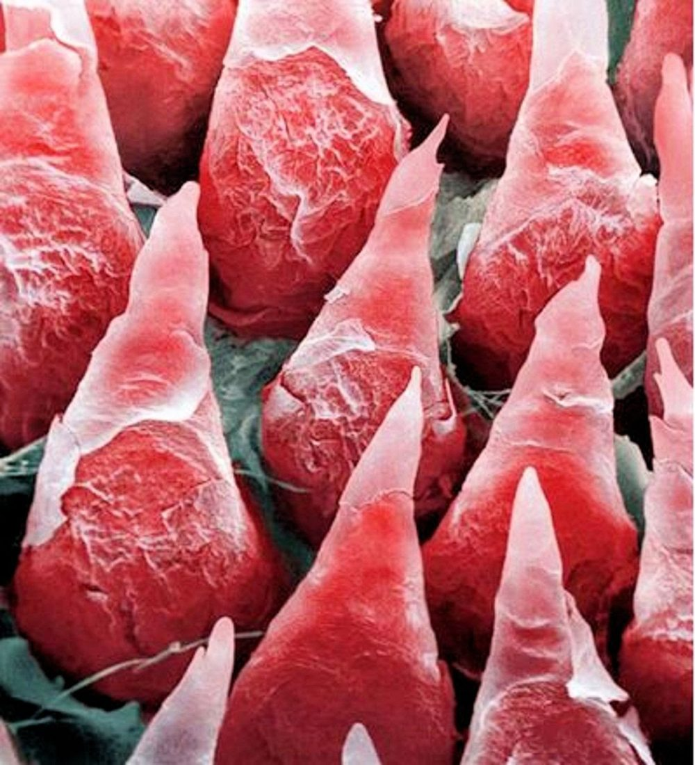 This is what a human tongue looks like under a microscope.