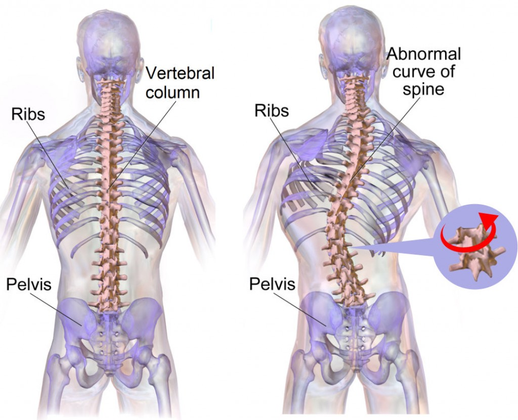 Scoliosis Management Market Global Key Players, Challenges