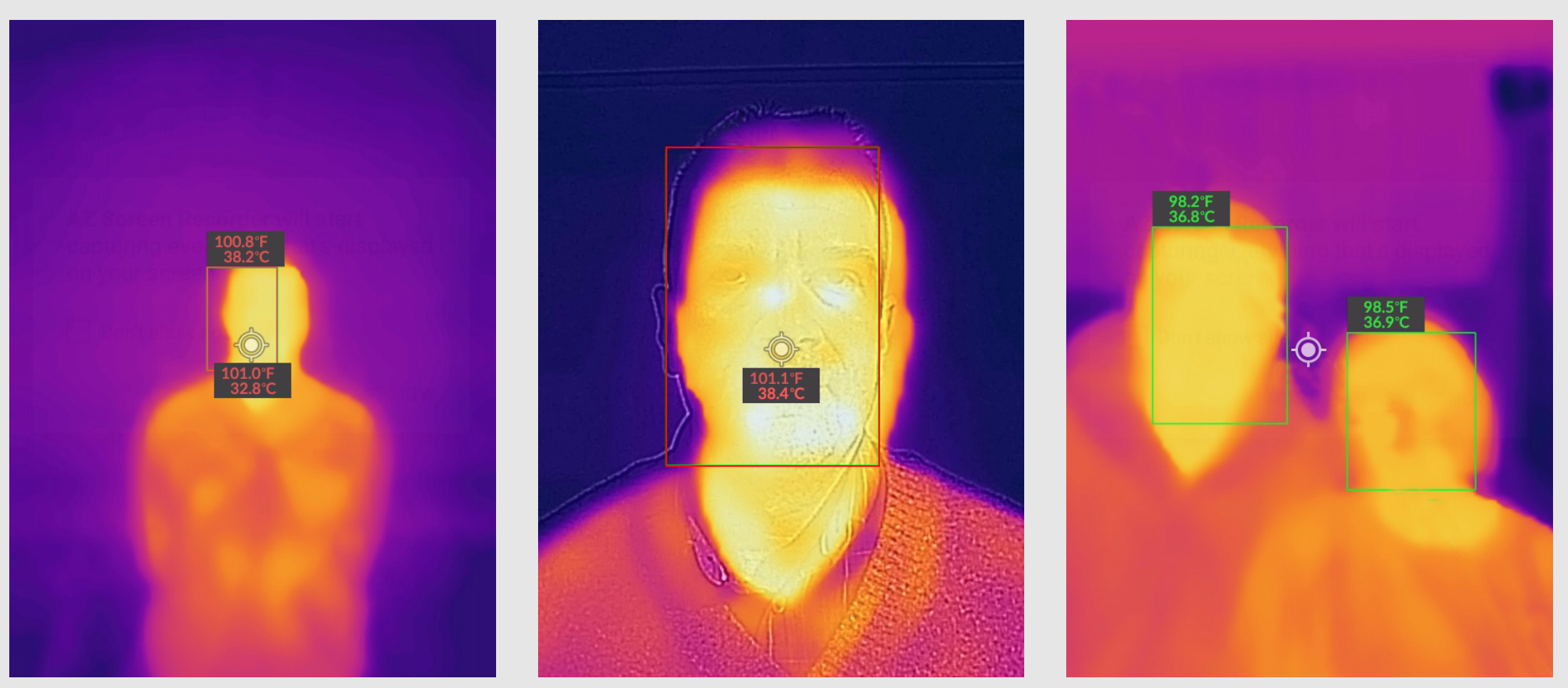Thermography Detection