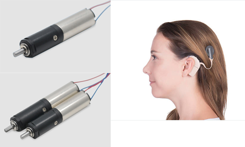 Gear Motor for Cochlear Implant