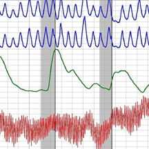 Polygraph Test Los Angeles chart
