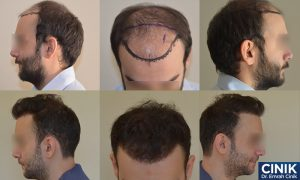 Affordable Hair Transplant in Turkey at Dr Cinik's Clinic