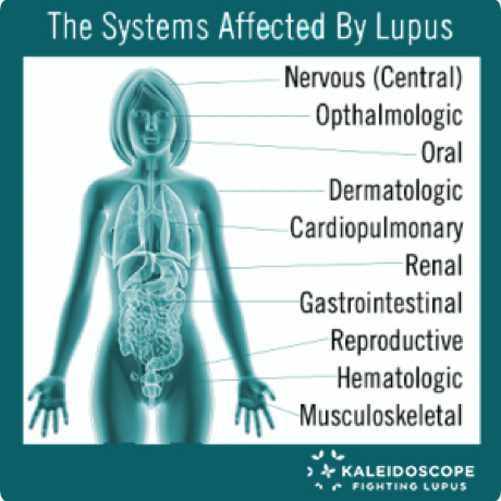 Systems-Affected-by-Lupus