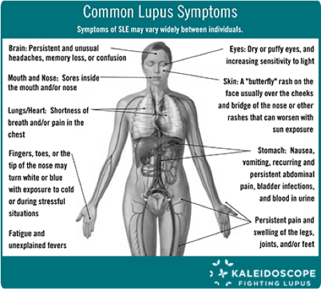 Common-Lupus-Symptoms