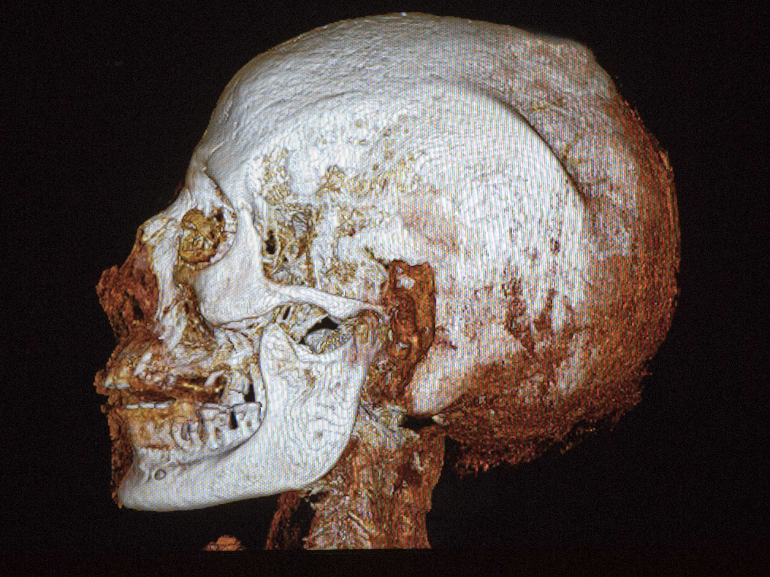 A CT scan of the skull of a 2,200-year-old Egyptian mummy on display ...