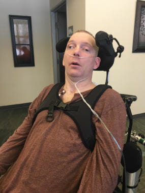 Travis Finkenbinder, pictured here on March 14, 2018, is permanently minimally conscious. A coworker struck him in the head with his float plane's ski in 2014.
