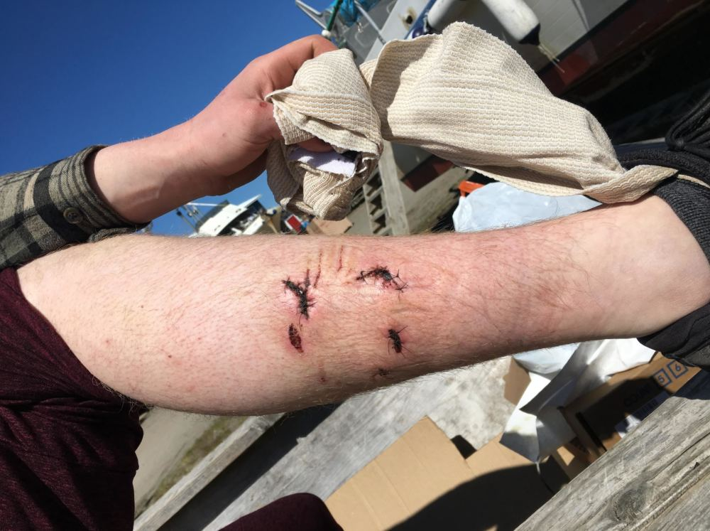 Stig Ure's leg had to receive 14 stitches after being bit by the bear. (Photo by Mitch Borden/KMXT) CREDIT MITCH BORDEN