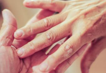 Know the Basics About Psoriasis