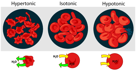 Osmosis phenomena in red blood cells. Red blood cells in hypertonic solution appear shrivelled, arrows show water leaving the blood cell. Red blood cells in isotonic solution have a normal shape, arrows show water entering and leaving the blood cell at an equal rate. Red blood cells in a hypotonic solution swell to larger than normal size, arrows show water entering the blood cell. One of the blood cells has burst open.