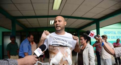 Carlos Bonilla, Nicaragua, CIDH, derechos humanos