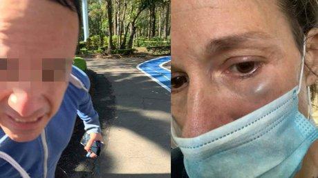 Mujer golpeada Parque Hundido.jpg