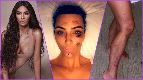 kim kardashian enfermedad que le aqueja desde adolescente (1).jpg