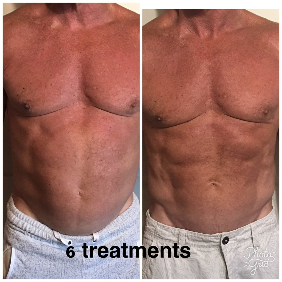 Westlake Body Contouring Light Therapy For Fat Loss