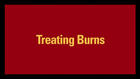 Treating Burns