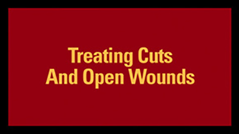 Treating Cuts And Open Wounds