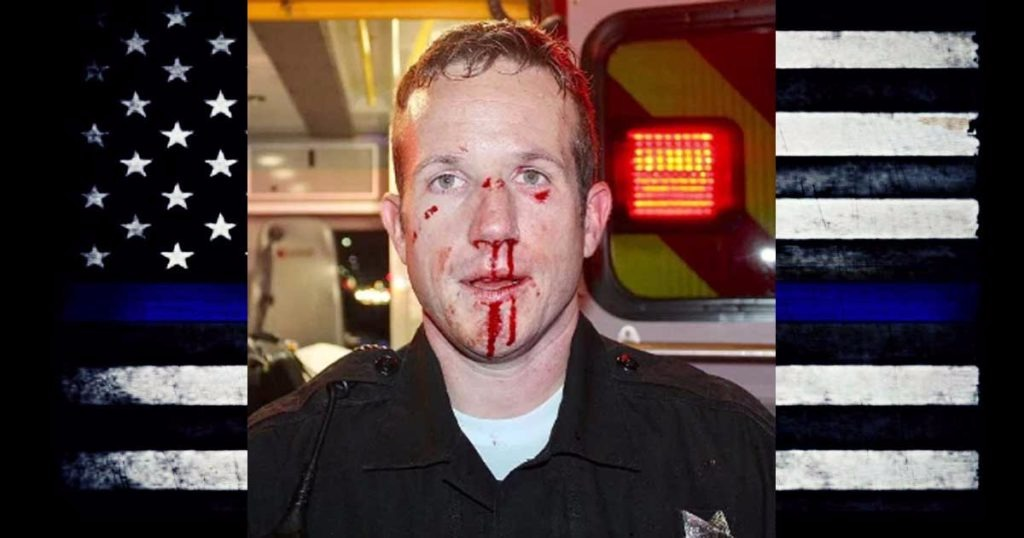 Richmond Police Sergeant Don Nelson Attacked While Helping Man Out of Middle of the Street